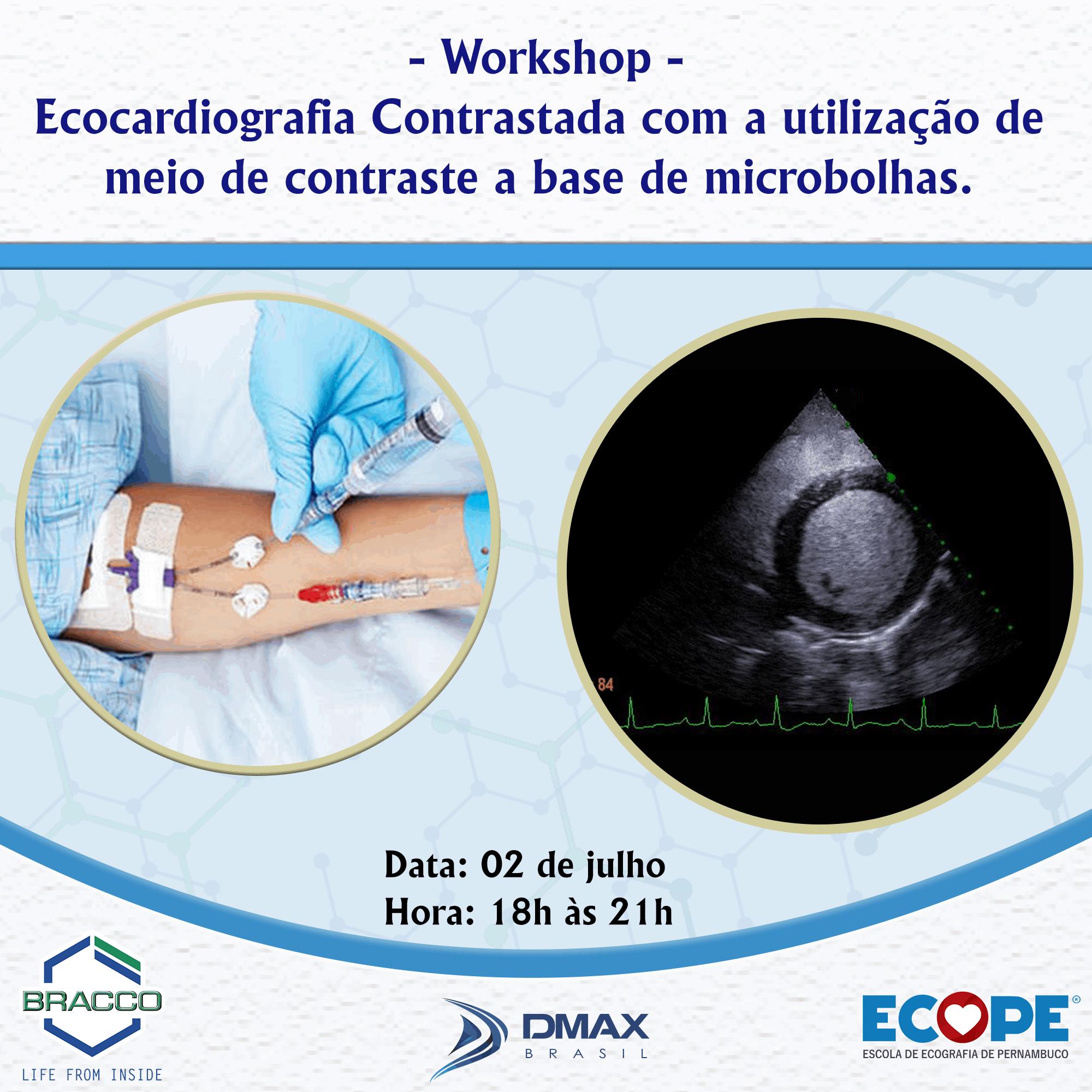 Ecope lança workshop gratuito de Contraste Ecocardiográfico